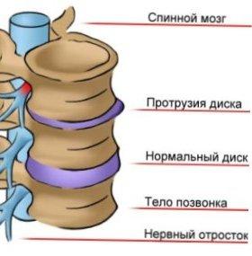 Протрузии в шее