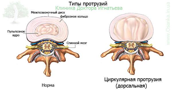 Задняя-циркулярная протрузия (циркулярно-дорсальная протрузия ...