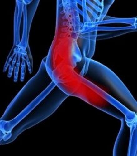 Седалищный нерв и причины боли, изображение 1 - spine5.com